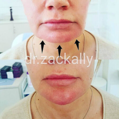 Chin Filler Model Treatment