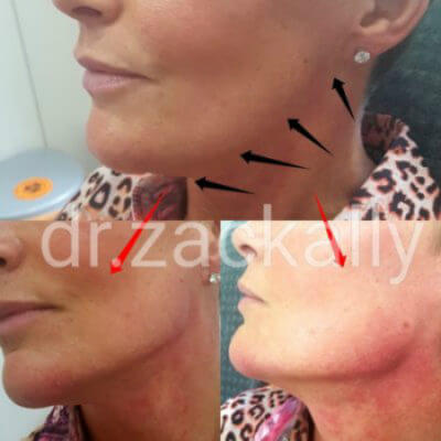 Jawline Filler Model Treatment