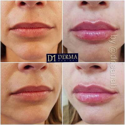 lip filler model treatment