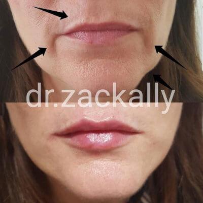 lip filler model treatment 2