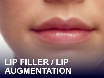 Lip FIller Model Treatment