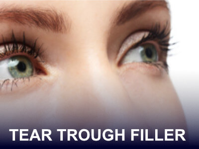 Tear Trough Filler Model Treatment