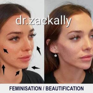 Feminisation - Beautification