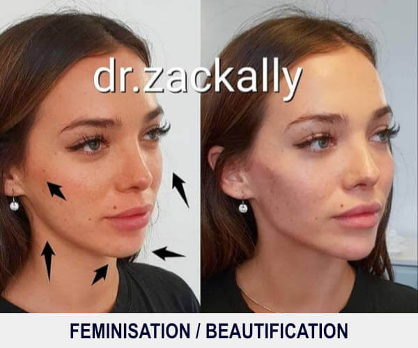 Feminisation - Beautification