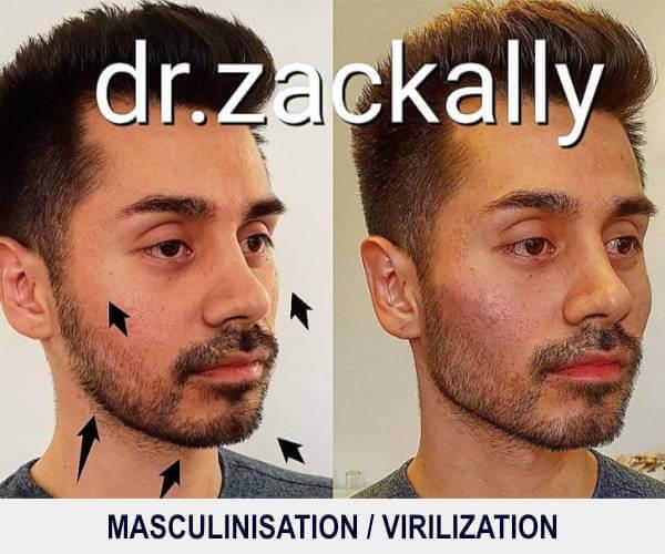 Masculinisation / Virilisation