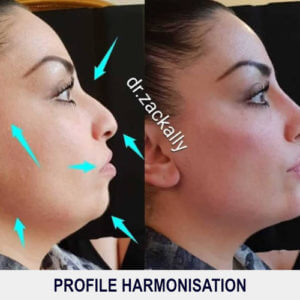 Profile Harmonisation