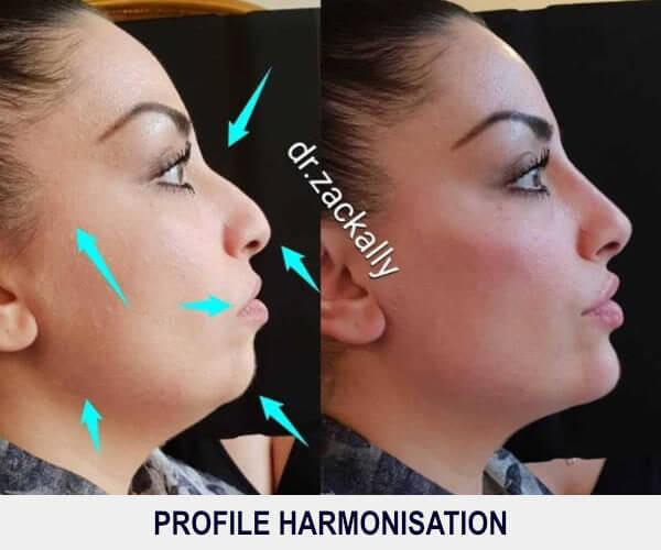 Profile Harmonisation