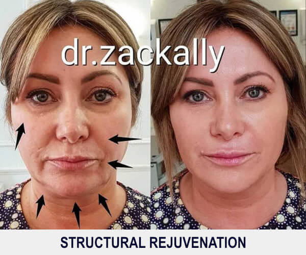 Structural Rejuvenation